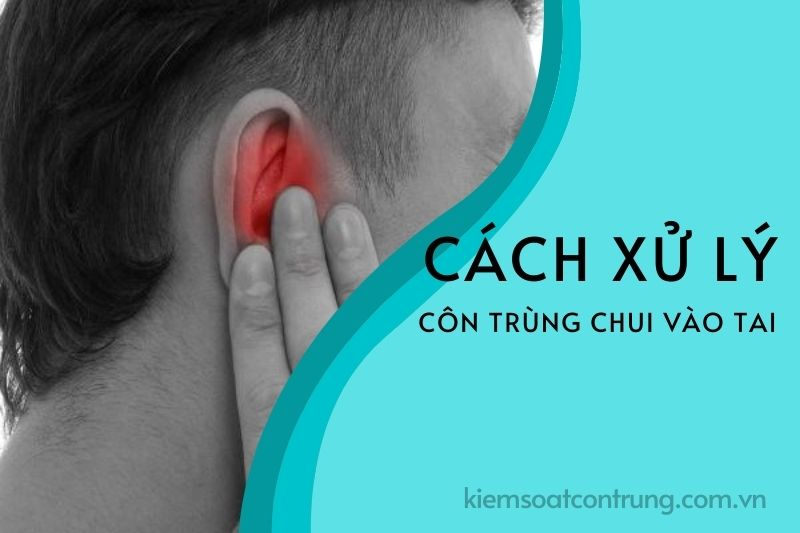 Cách xử lý côn trùng chui vào tai