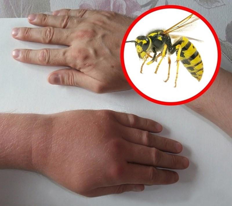 Nhận biết vết cắn côn trùng