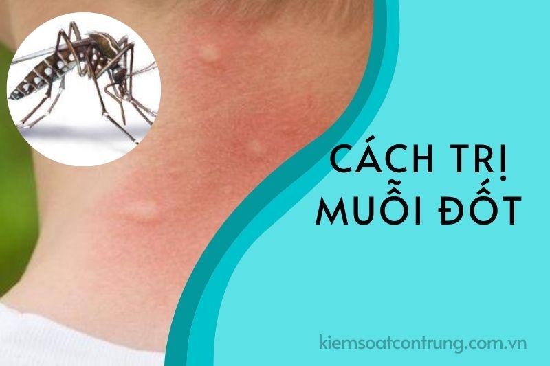 Cách trị muỗi đốt